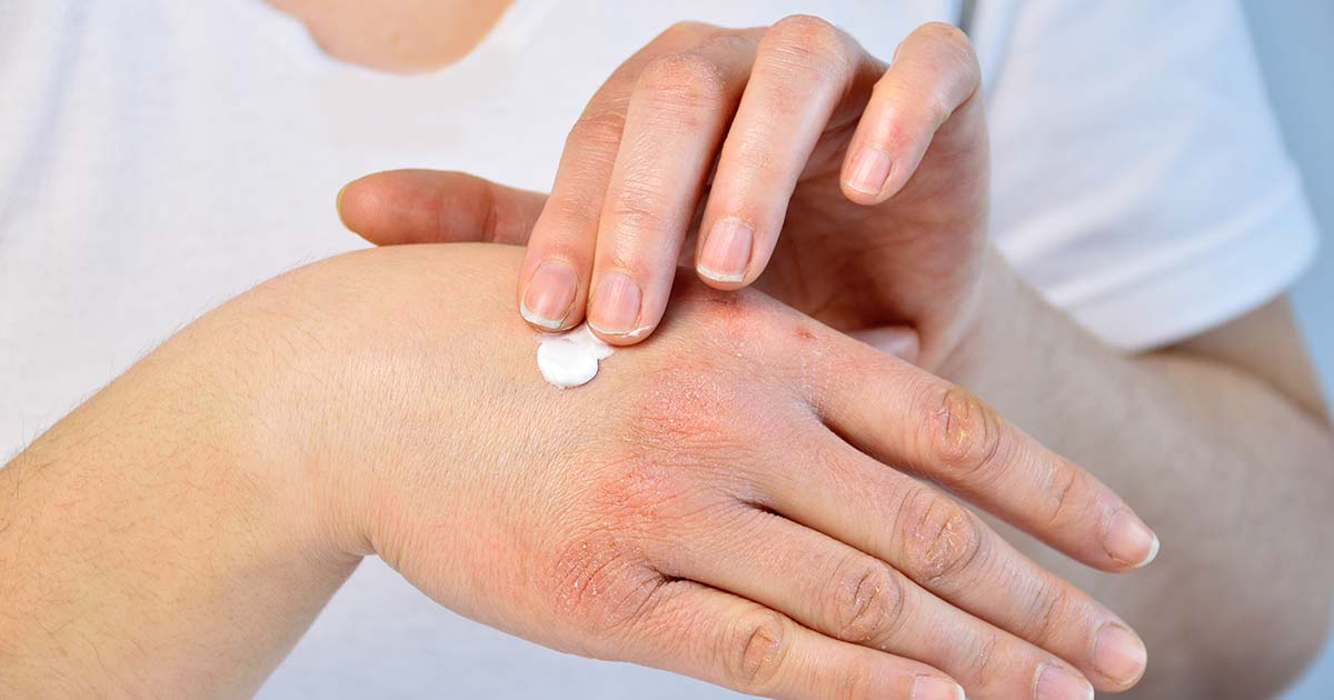 Young woman putting moisturizer onto her hand with very dry skin and deep cracks with cream